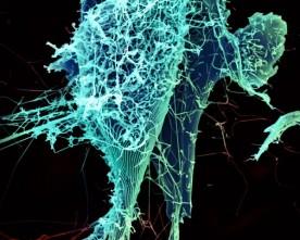 Ebola en reizen